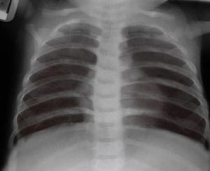bCPAP X-Ray of baby chest